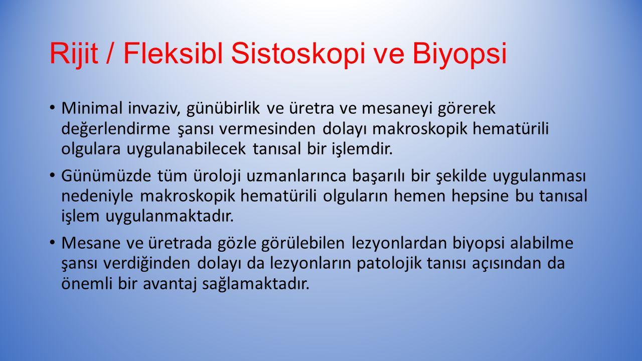 Rijit / Fleksibl Sistoskopi ve Biyopsi