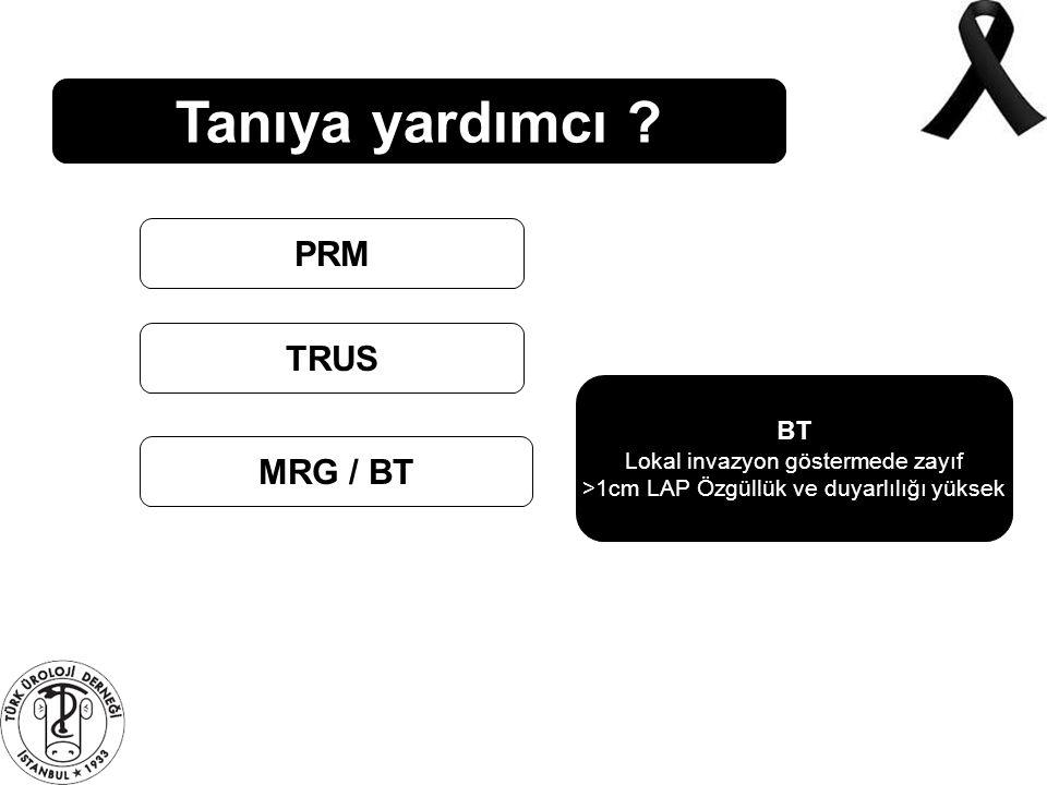 Tanıya yardımcı PRM TRUS MRG / BT BT Lokal invazyon göstermede zayıf