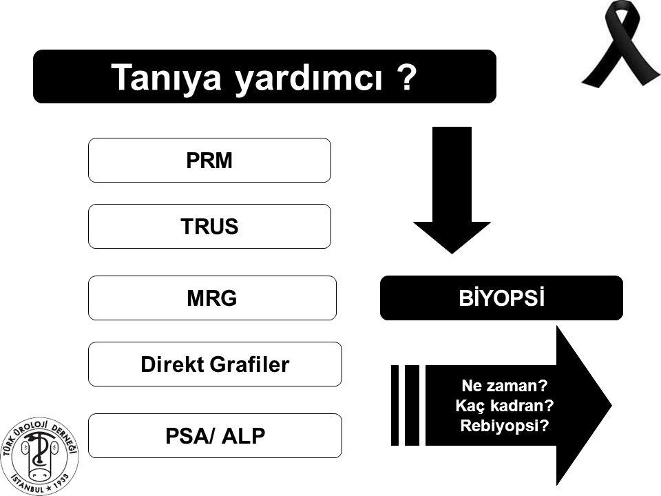Tanıya yardımcı PRM TRUS MRG BİYOPSİ Direkt Grafiler PSA/ ALP