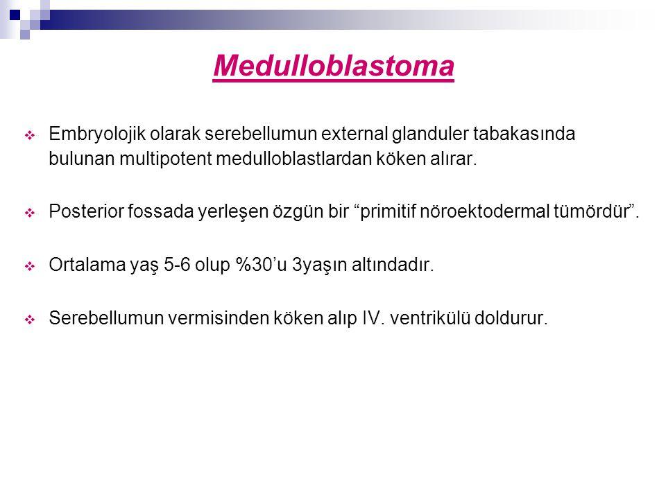 Medulloblastoma Embryolojik olarak serebellumun external glanduler tabakasında bulunan multipotent medulloblastlardan köken alırar.