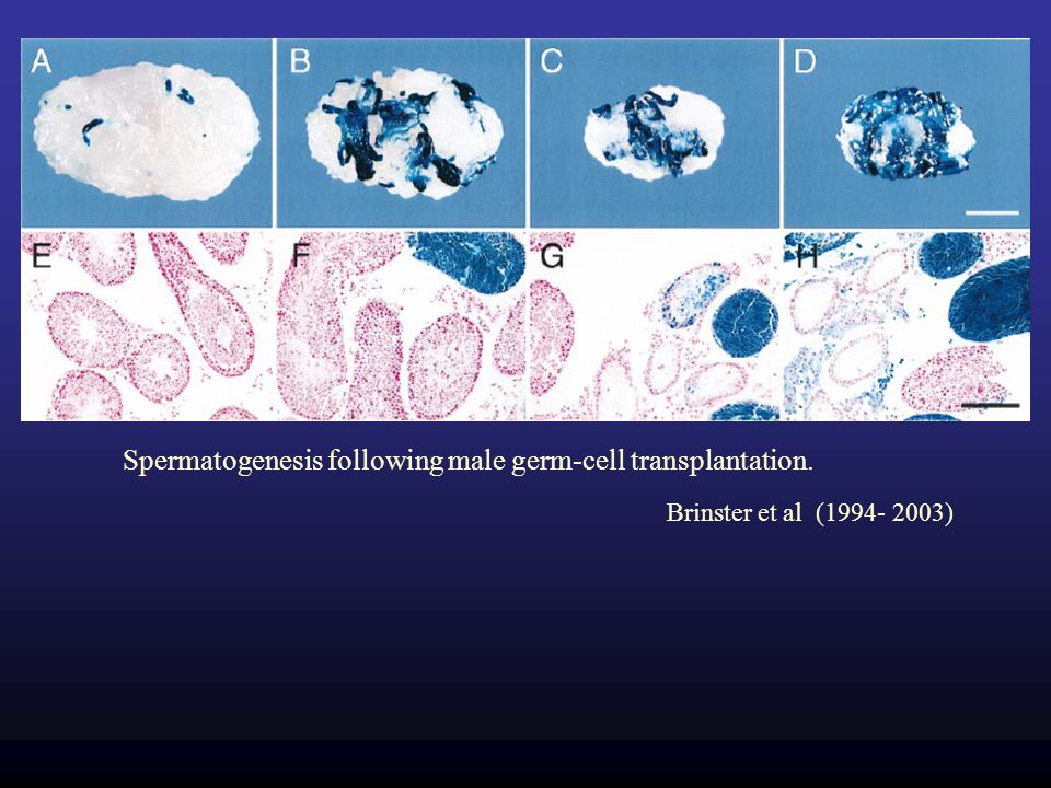 Spermatogenesis following male germ-cell transplantation.