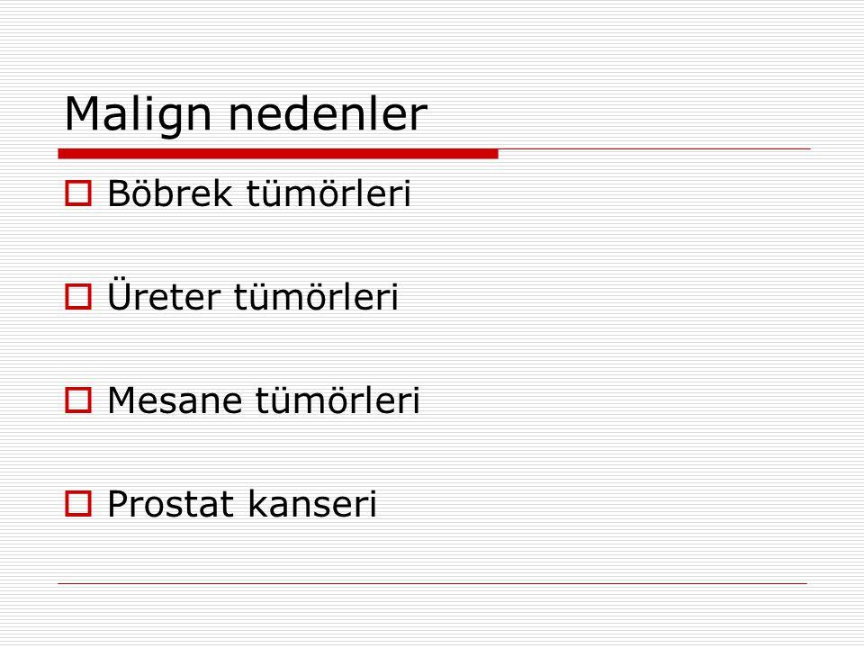 Malign nedenler Böbrek tümörleri Üreter tümörleri Mesane tümörleri