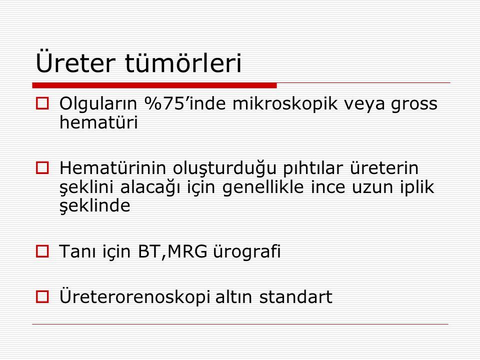 Üreter tümörleri Olguların %75'inde mikroskopik veya gross hematüri
