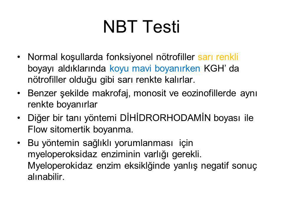 NBT Testi