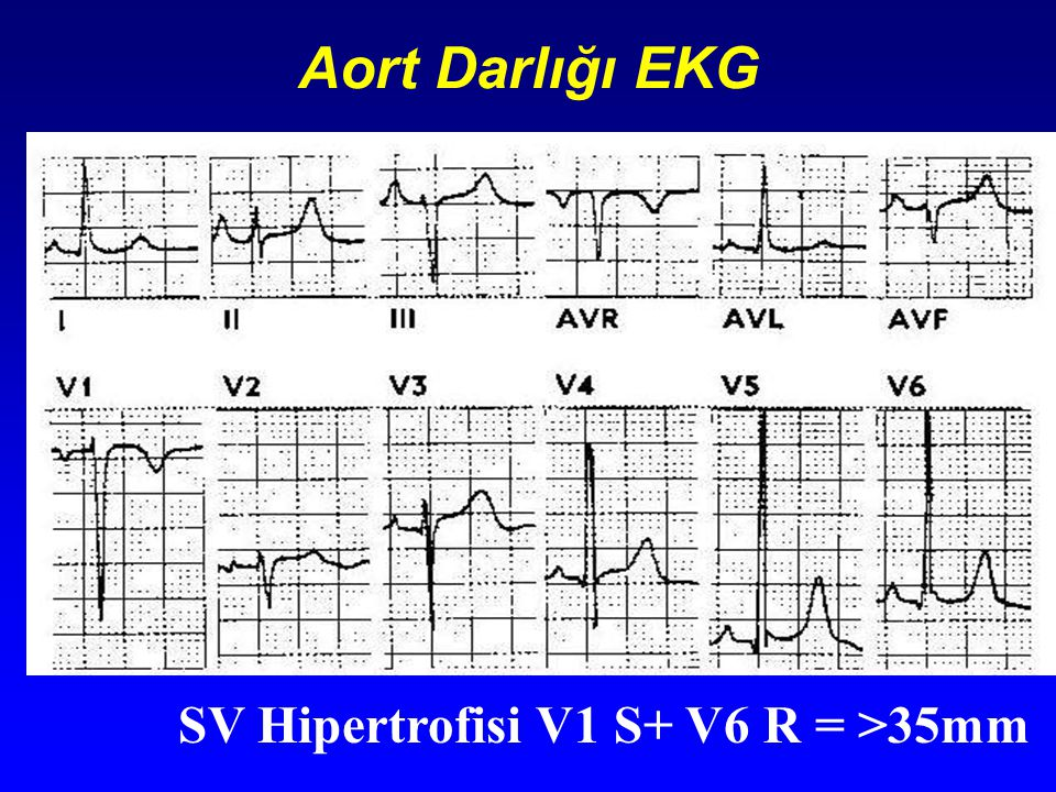 Aort Darlığı EKG SV Hipertrofisi V1 S+ V6 R = >35mm