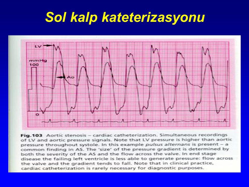 Sol kalp kateterizasyonu