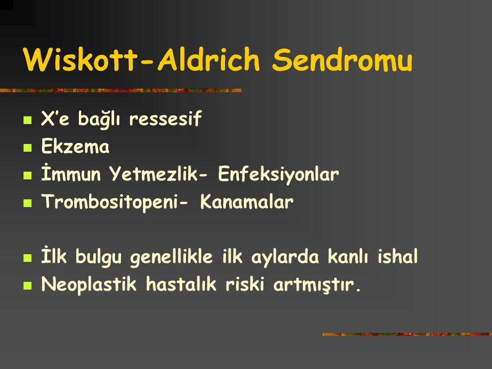 Wiskott-Aldrich Sendromu