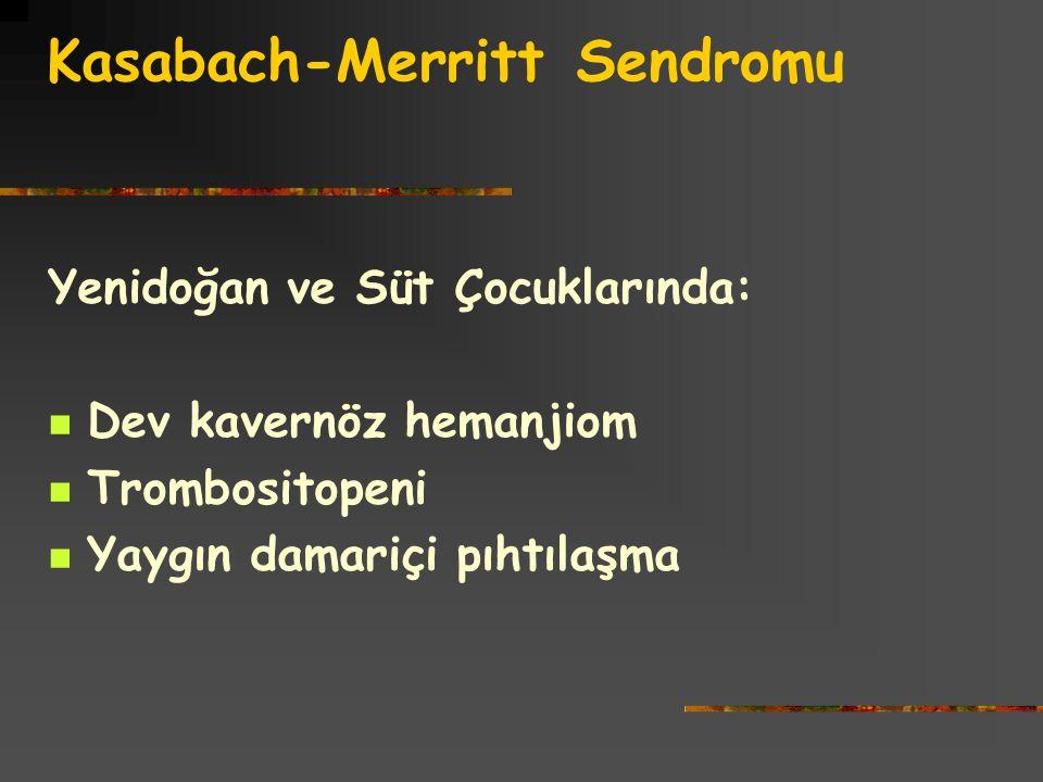Kasabach-Merritt Sendromu