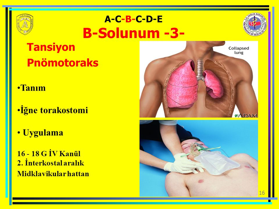 A-C-B-C-D-E B-Solunum -3-