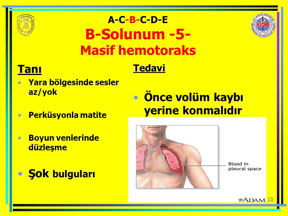 A-C-B-C-D-E B-Solunum -5- Masif hemotoraks