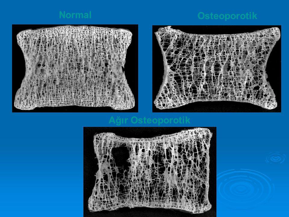 Normal Osteoporotik Ağır Osteoporotik