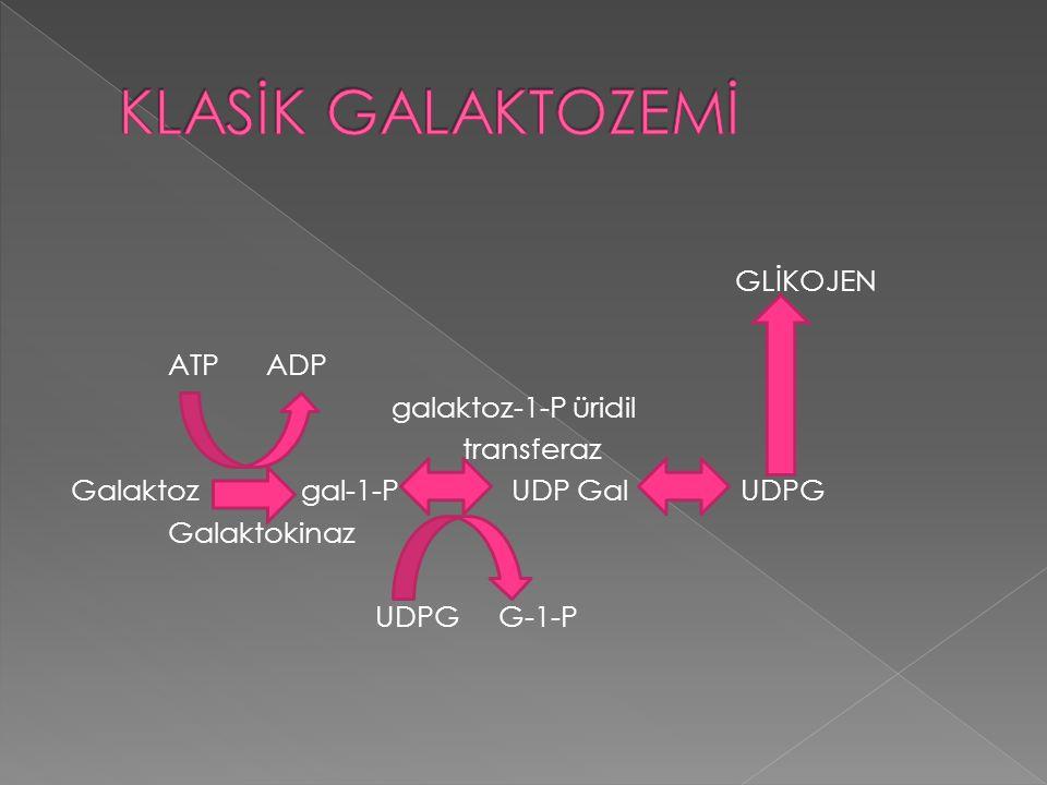 KLASİK GALAKTOZEMİ GLİKOJEN ATP ADP galaktoz-1-P üridil transferaz Galaktoz gal-1-P UDP Gal UDPG Galaktokinaz UDPG G-1-P