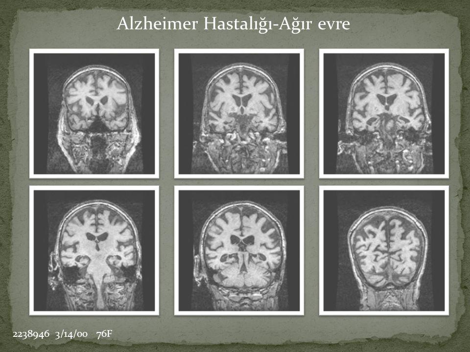 Alzheimer Hastalığı-Ağır evre