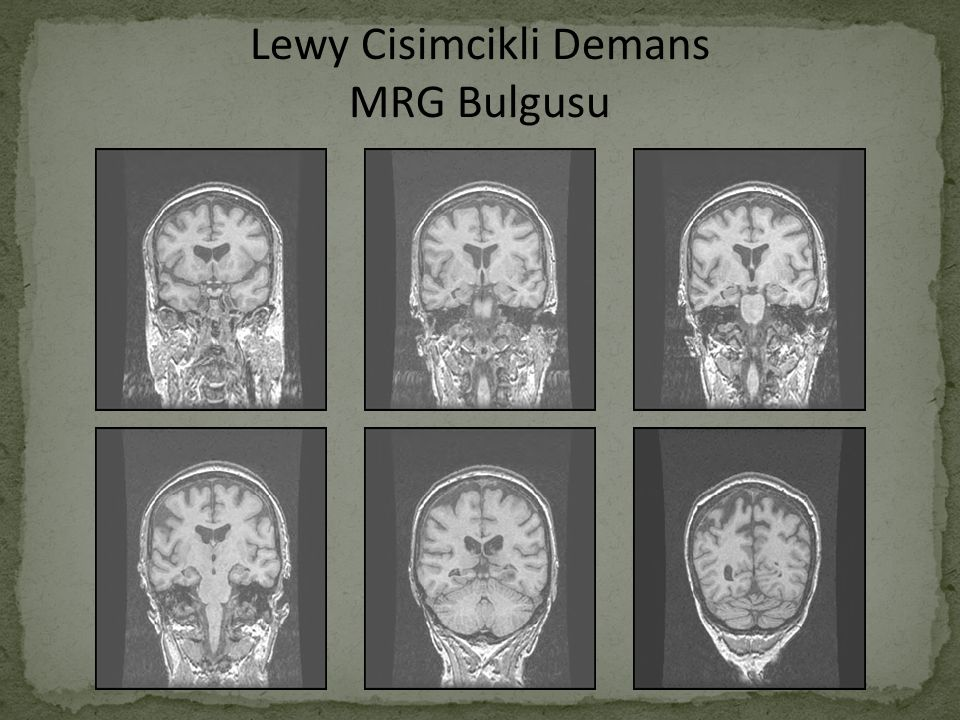 Lewy Cisimcikli Demans