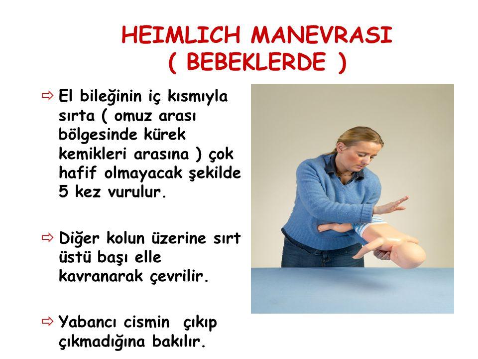 HEIMLICH MANEVRASI ( BEBEKLERDE )