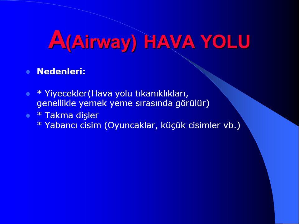 A(Airway) HAVA YOLU Nedenleri: