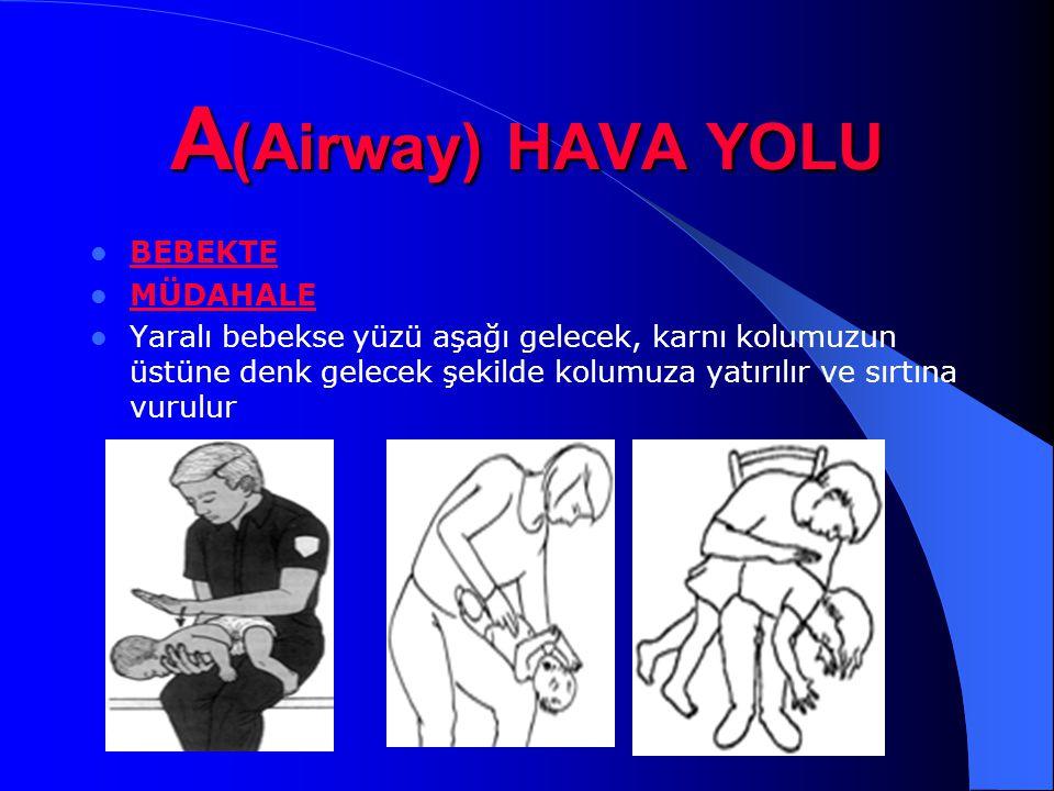 A(Airway) HAVA YOLU BEBEKTE MÜDAHALE