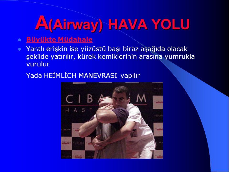 A(Airway) HAVA YOLU Büyükte Müdahale