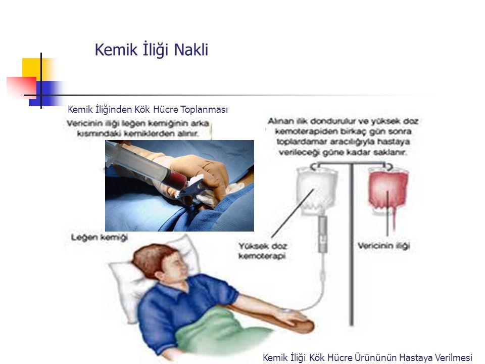 Kemik İliği Nakli Kemik İliğinden Kök Hücre Toplanması