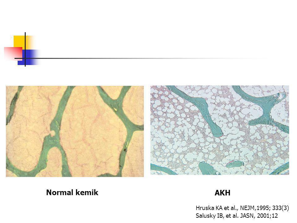 Normal kemik AKH Hruska KA et al., NEJM,1995; 333(3)