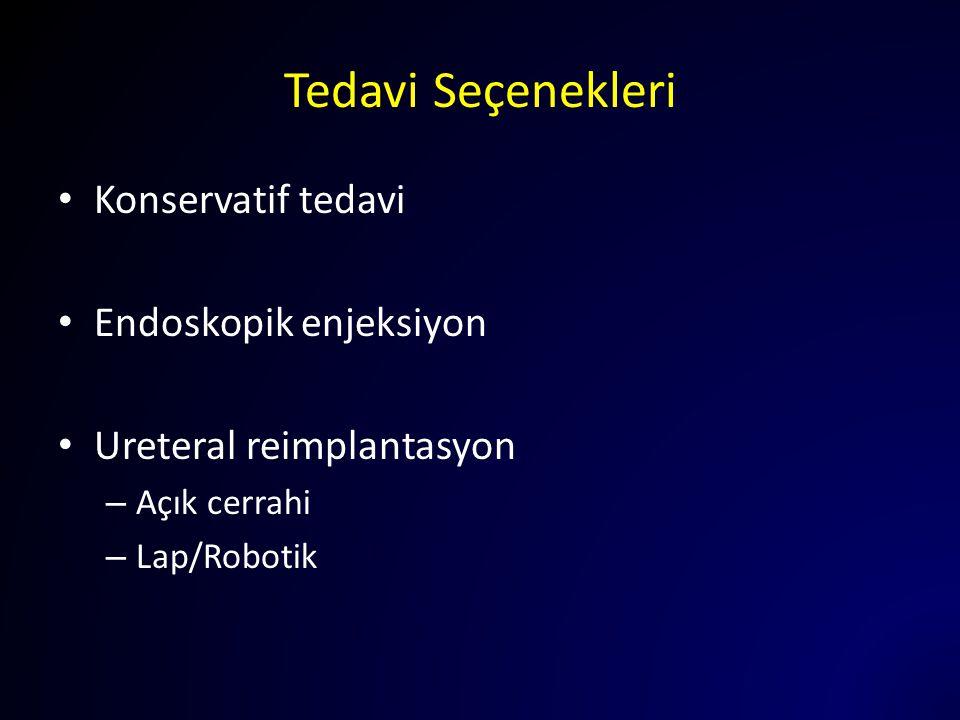 Tedavi Seçenekleri Konservatif tedavi Endoskopik enjeksiyon