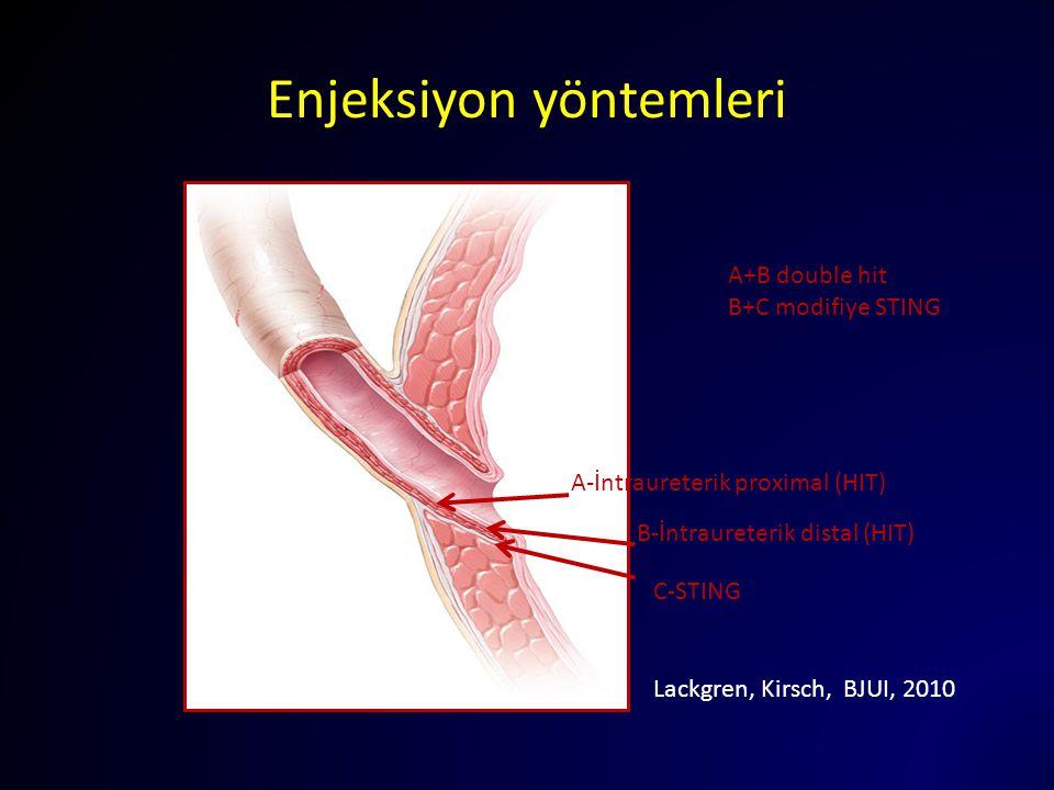 Enjeksiyon yöntemleri