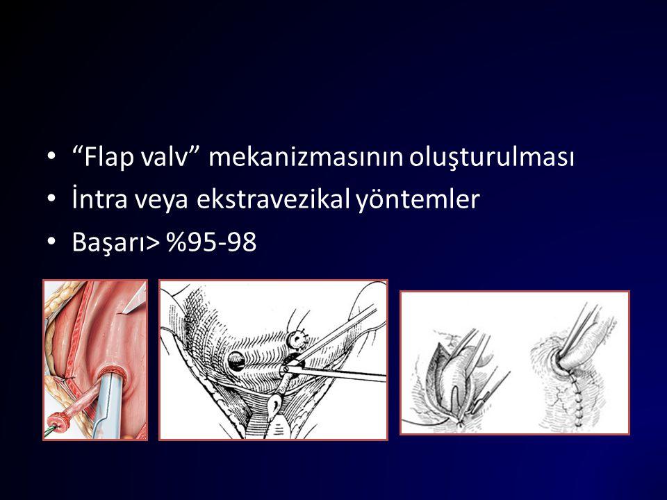 Flap valv mekanizmasının oluşturulması