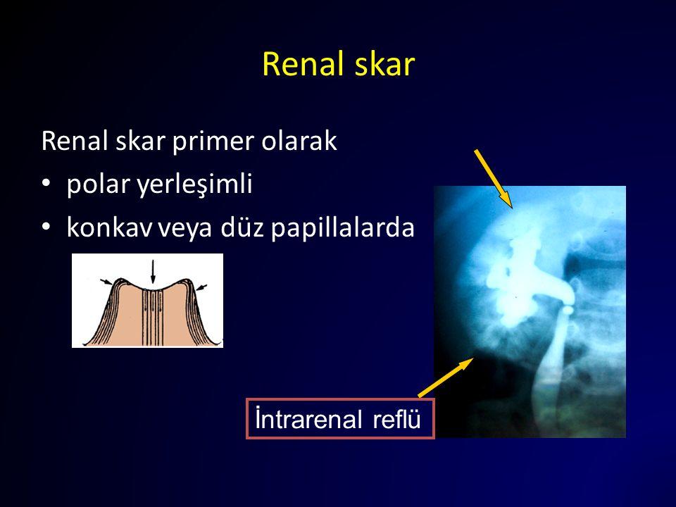 Renal skar Renal skar primer olarak polar yerleşimli