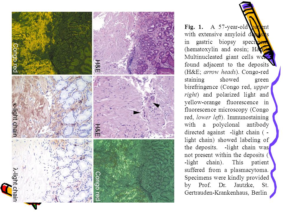 Fig. 1. A 57-year-old patient with extensive amyloid deposits in gastric biopsy specimens (hematoxylin and eosin; H&E).