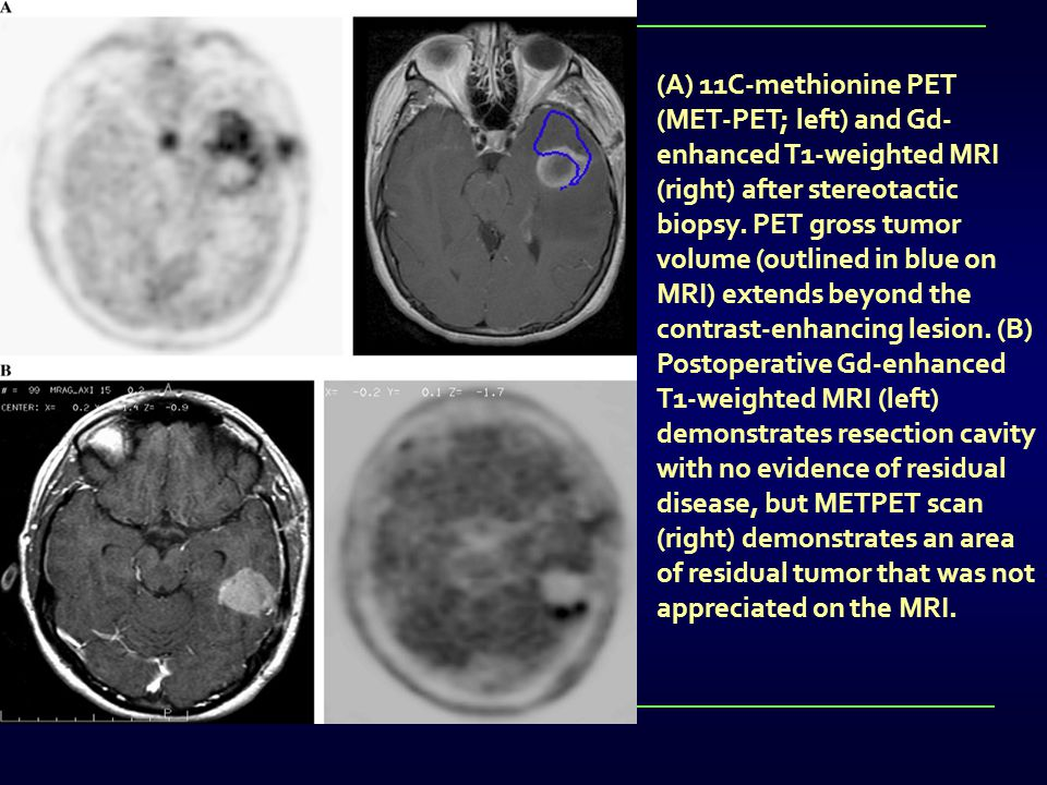 (A) 11C-methionine PET (MET-PET; left) and Gd-enhanced T1-weighted MRI (right) after stereotactic biopsy.