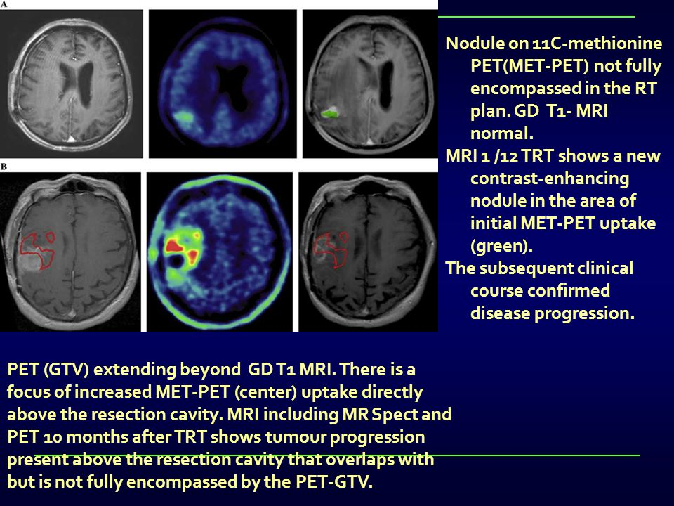 Nodule on 11C-methionine PET(MET-PET) not fully encompassed in the RT plan. GD T1- MRI normal.