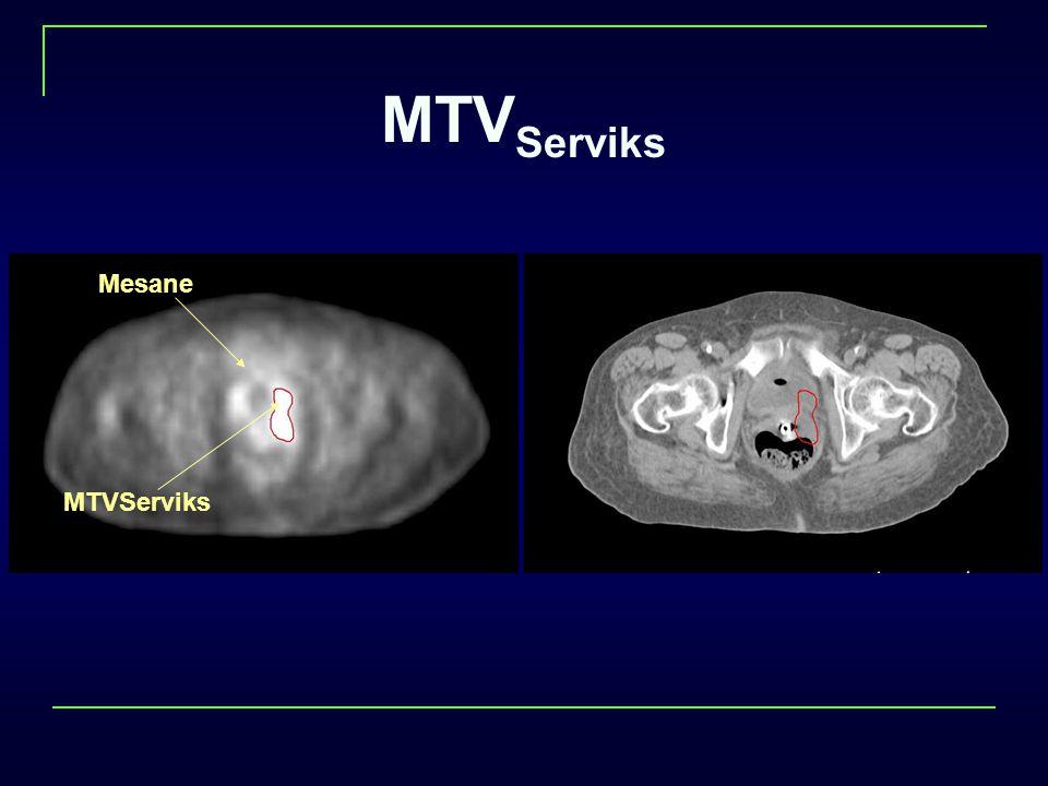 MTVServiks Mesane MTVServiks