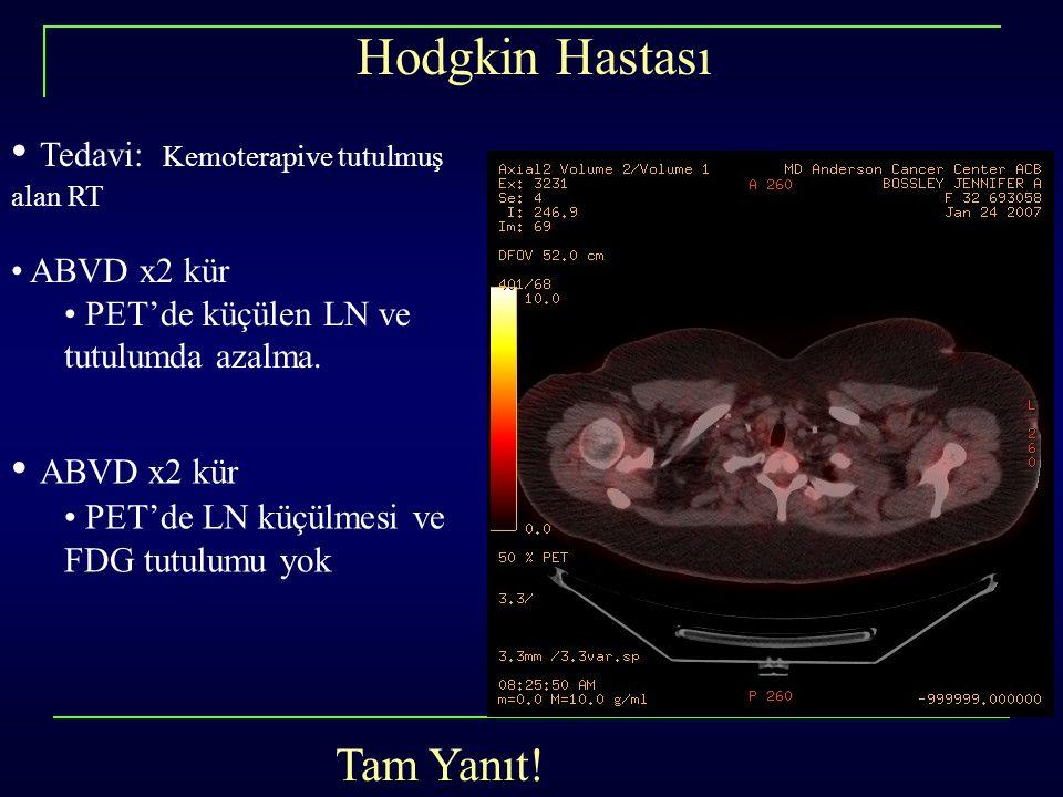 Hodgkin Hastası Tedavi: Kemoterapive tutulmuş alan RT ABVD x2 kür
