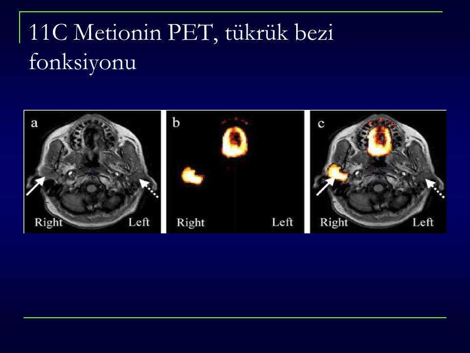 11C Metionin PET, tükrük bezi fonksiyonu