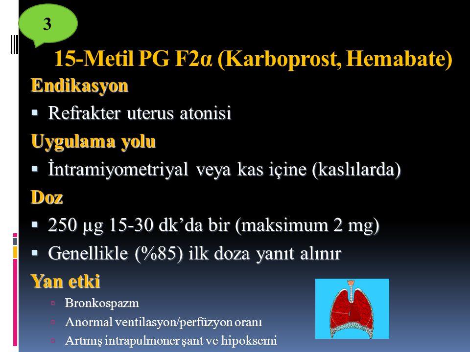 15-Metil PG F2α (Karboprost, Hemabate)