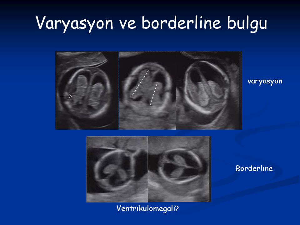 Varyasyon ve borderline bulgu