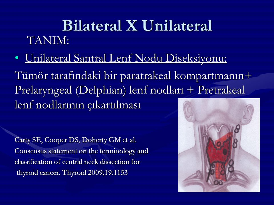 Bilateral X Unilateral