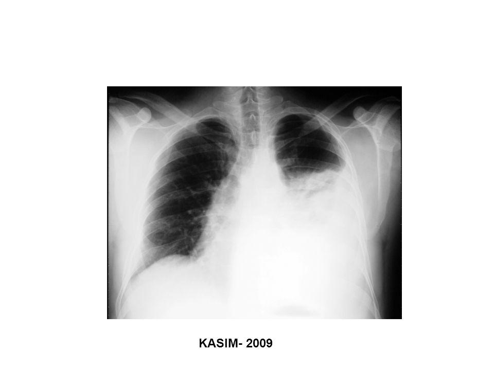 KASIM- 2009