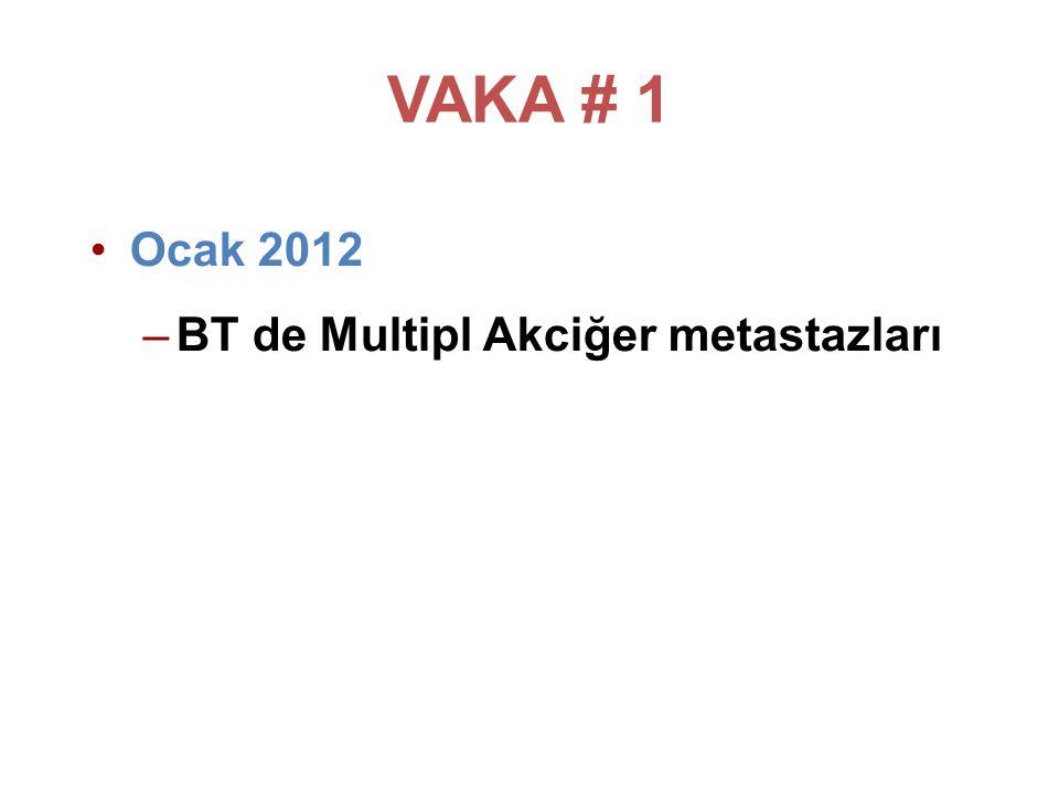 VAKA # 1 Ocak 2012 BT de Multipl Akciğer metastazları