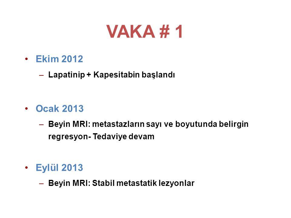 VAKA # 1 Ekim 2012. Lapatinip + Kapesitabin başlandı. Ocak 2013. Beyin MRI: metastazların sayı ve boyutunda belirgin regresyon- Tedaviye devam.