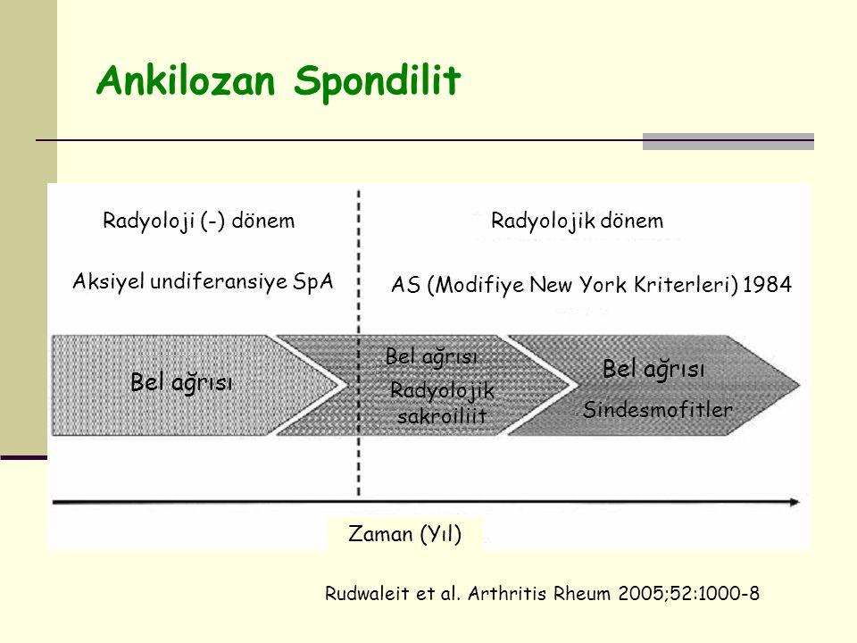 Ankilozan Spondilit Bel ağrısı Radyolojik sakroiliit Sindesmofitler