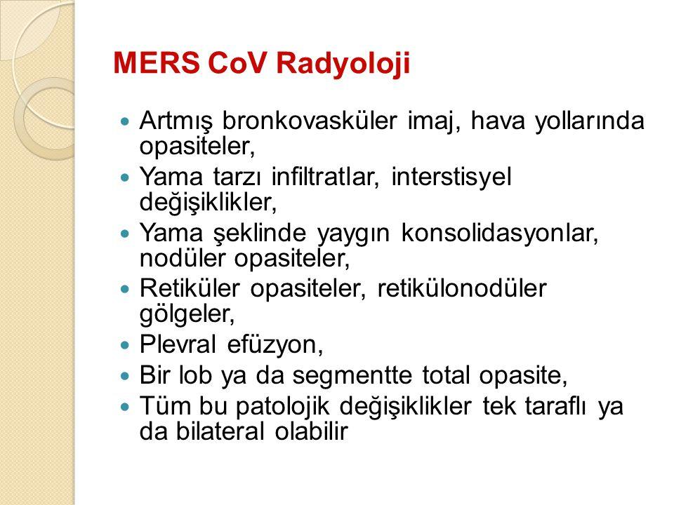 MERS CoV Radyoloji Artmış bronkovasküler imaj, hava yollarında opasiteler, Yama tarzı infiltratlar, interstisyel değişiklikler,