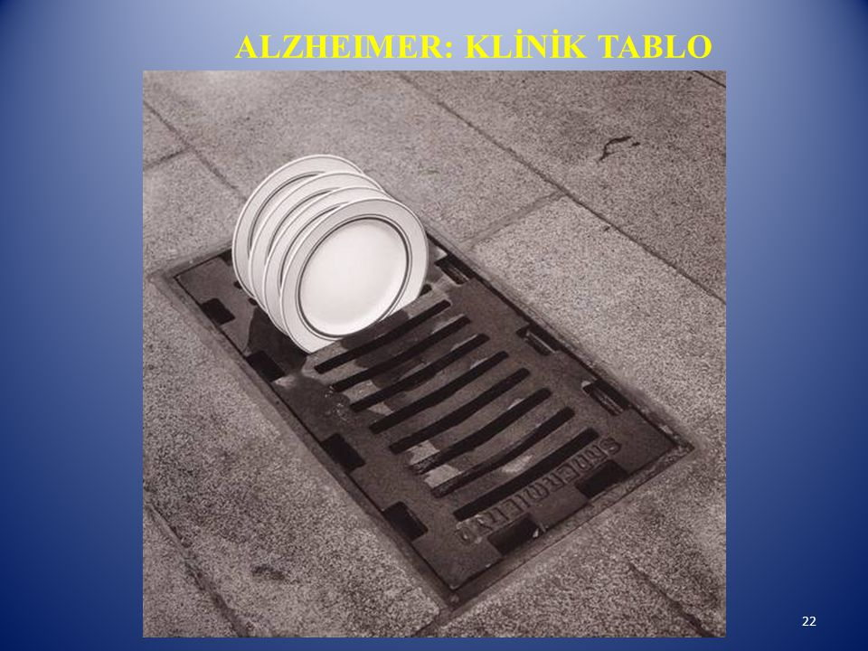 ALZHEIMER: KLİNİK TABLO