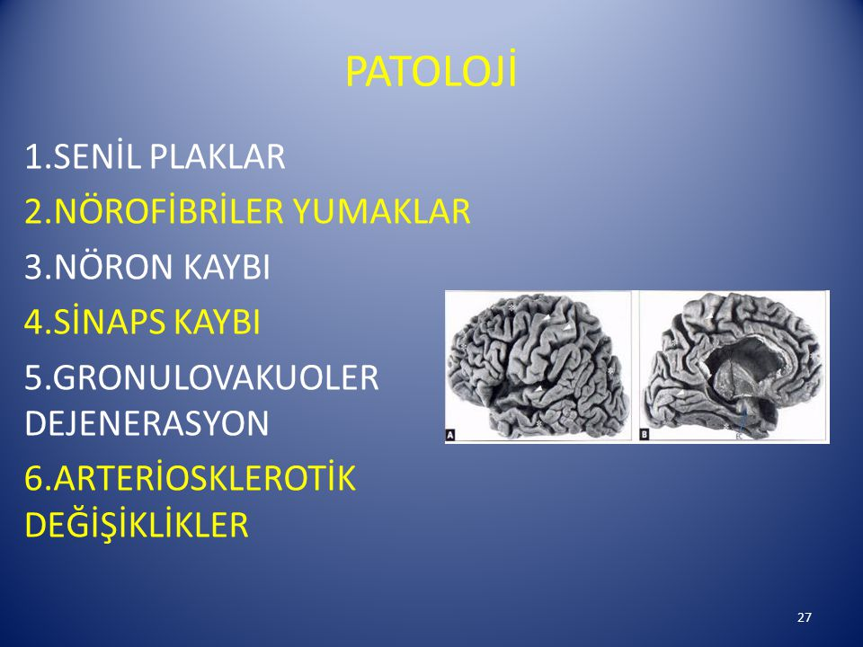 PATOLOJİ 1.SENİL PLAKLAR 2.NÖROFİBRİLER YUMAKLAR 3.NÖRON KAYBI