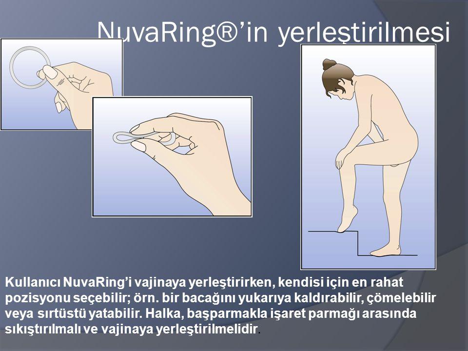 NuvaRing®'in yerleştirilmesi