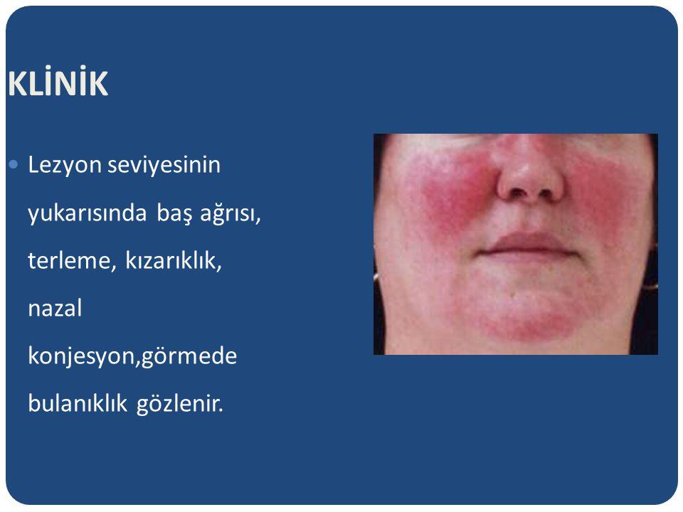 KLİNİK Lezyon seviyesinin yukarısında baş ağrısı, terleme, kızarıklık, nazal konjesyon,görmede bulanıklık gözlenir.