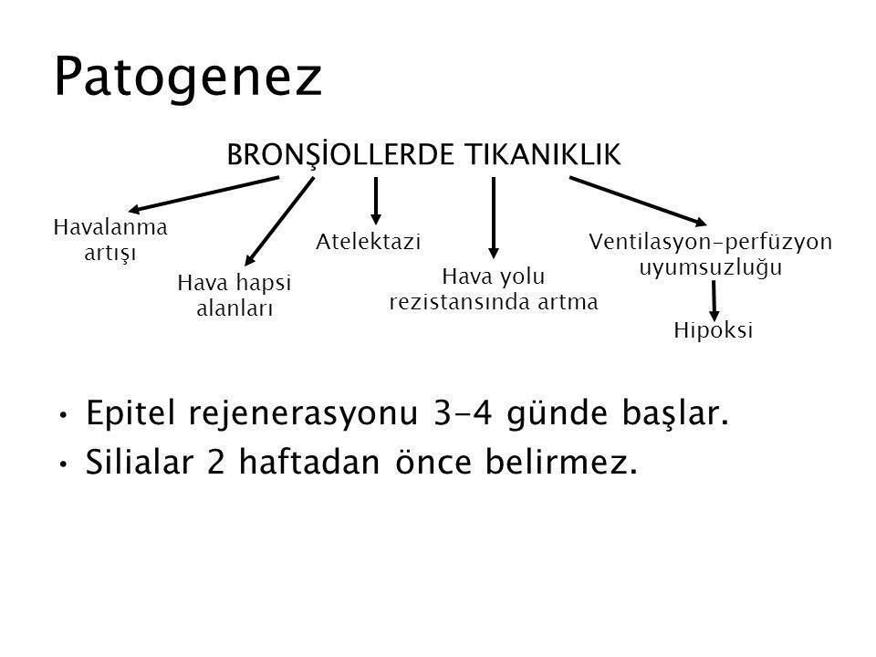 Patogenez Epitel rejenerasyonu 3-4 günde başlar.