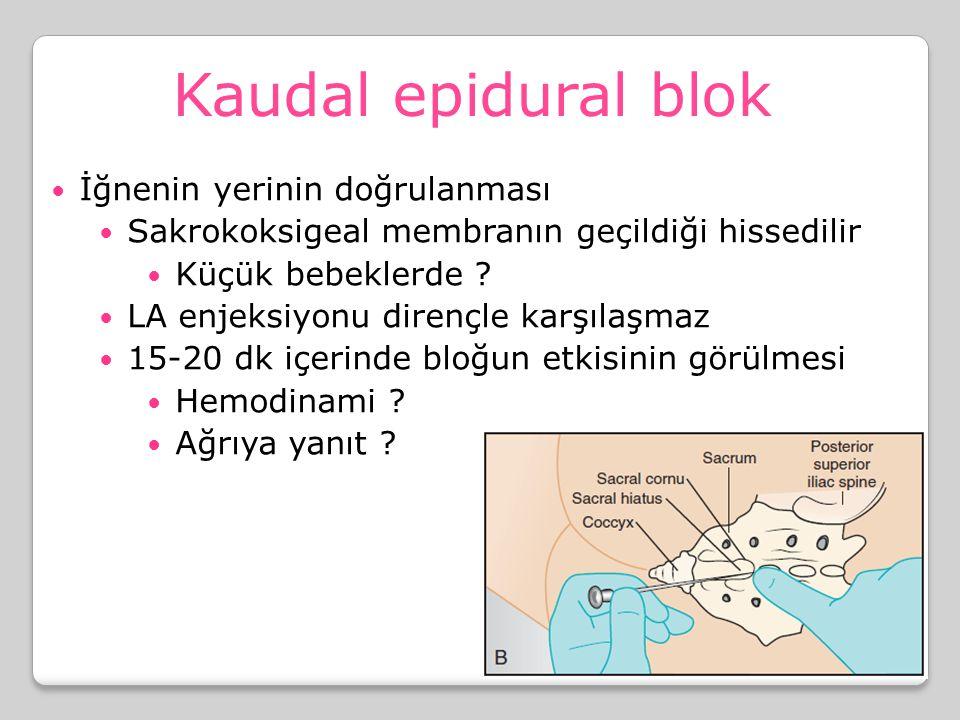 Kaudal epidural blok İğnenin yerinin doğrulanması