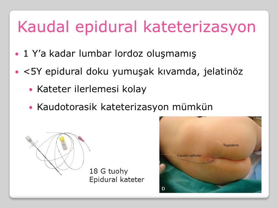 Kaudal epidural kateterizasyon