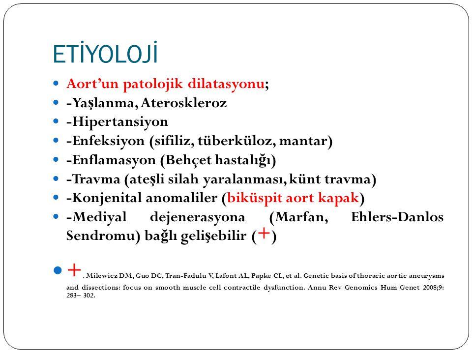 ETİYOLOJİ Aort'un patolojik dilatasyonu; -Yaşlanma, Ateroskleroz. -Hipertansiyon. -Enfeksiyon (sifiliz, tüberküloz, mantar)